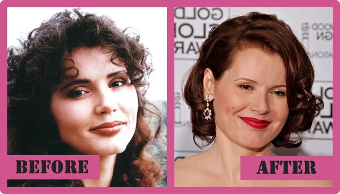 Geena Davis Plastic Surgery Before And After