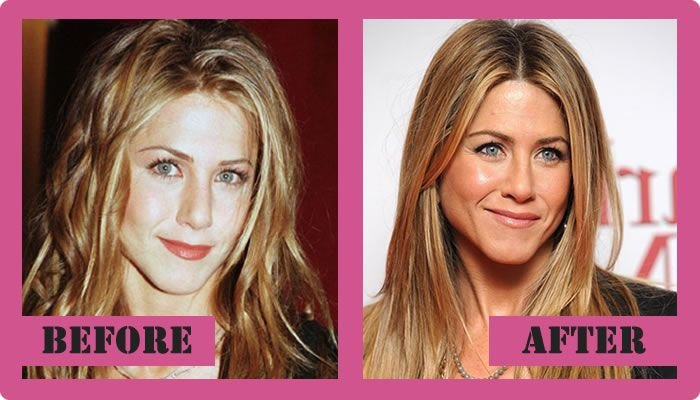 Image result for jennifer aniston cosmetic surgery before and after