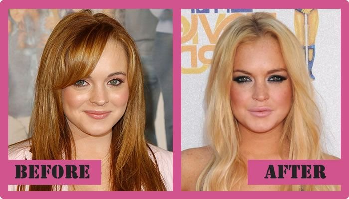 Lindsay Lohan Plastic Surgery Before And After