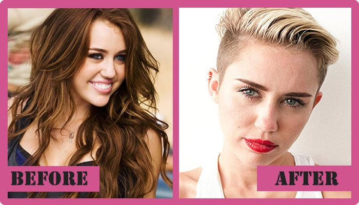 Miley Cyrus Plastic Surgery Before And After