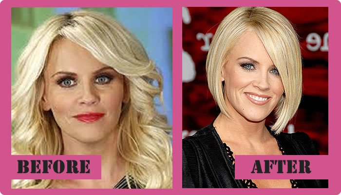 Jenny Mccarthy Plastic Surgery Before And After
