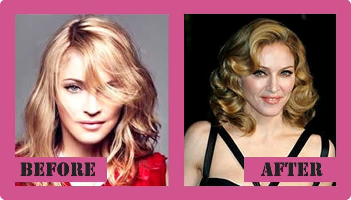 Madonna Plastic Surgery Before And After
