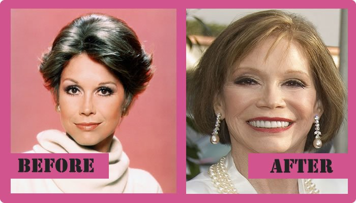 Mary Tyler Moore Plastic Surgery Before And After