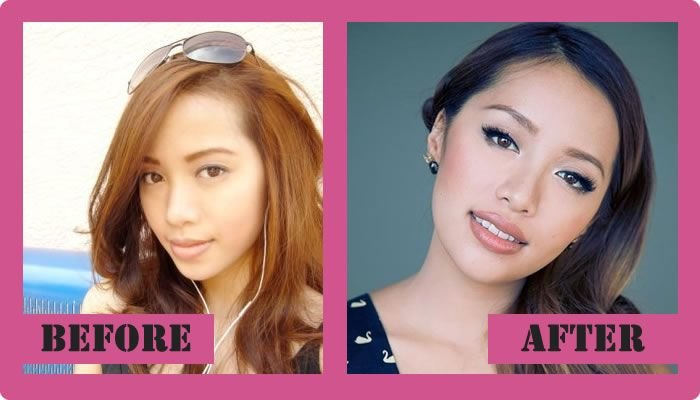 Michelle Phan Plastic Surgery Before And After