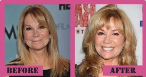 Kathie Lee Gifford Plastic Surgery Before And After