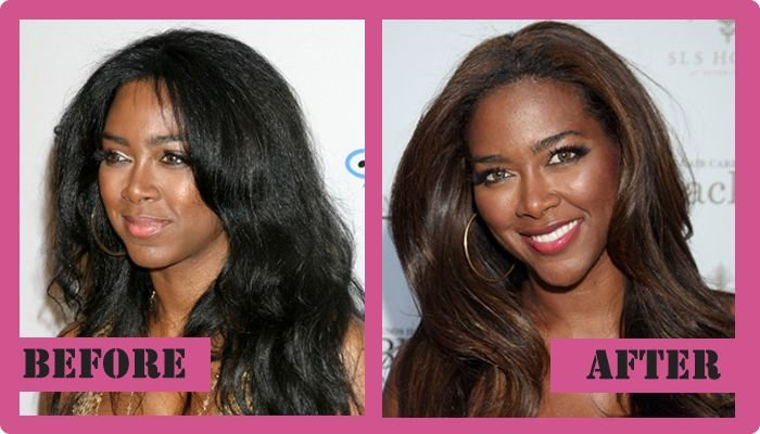 Kenya moore plastic surgery has probably happened and it gave good