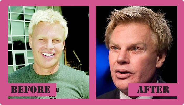 Mike Jeffries Plastic Surgery – Even Businessmen Want To Look Better ...