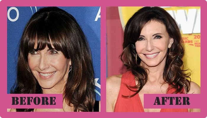 Mary Steenburgen Plastic Surgery Before And After