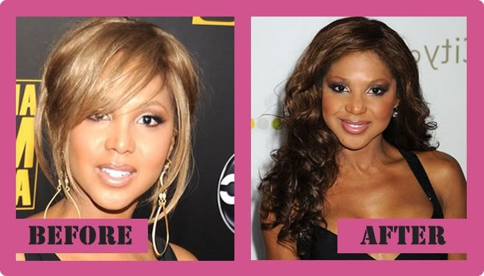 Toni Braxton Plastic Surgery Before And After