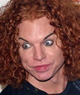 carrot top plastic surgery before and after
