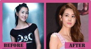 Lee Da Hae Plastic Surgery Before And After