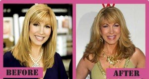 Leeza Gibbons Plastic Surgery Before And After