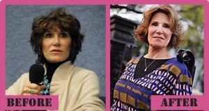 Mary Matalin Plastic Surgery Before And After