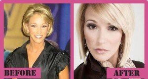 Paula White Plastic Surgery Before And After
